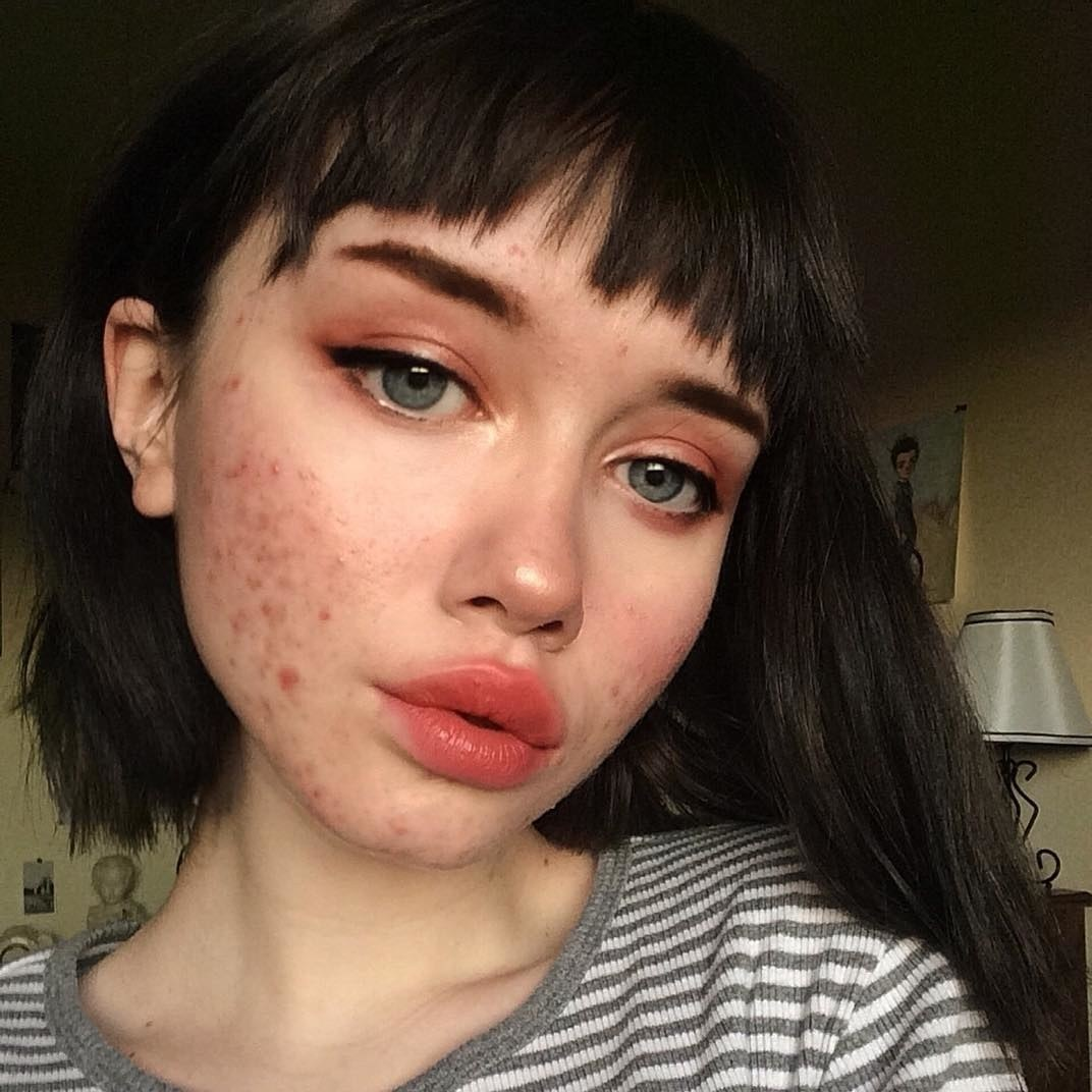 We need to talk about PCOS and hormonal acne | Dazed Beauty