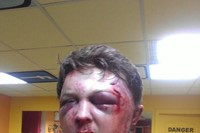 Victor Svyatski beaten up by police 9
