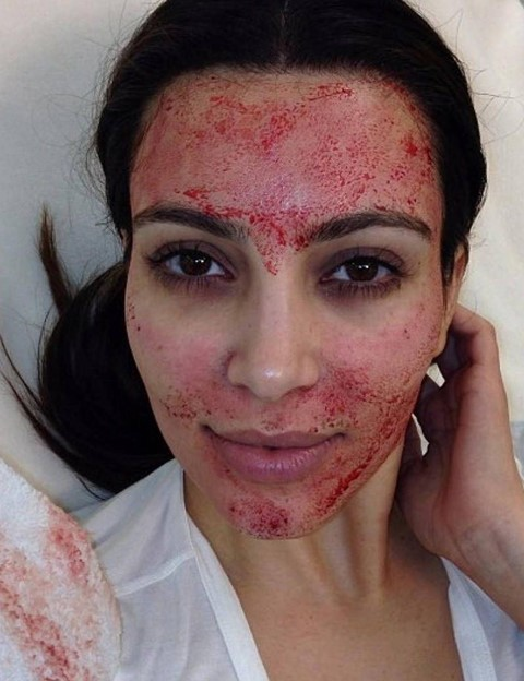 kim kardashian vampire facial blood period