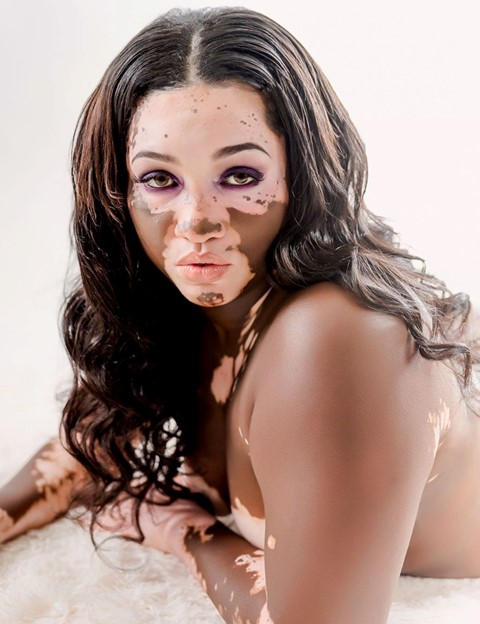 iomikoe johnson woods vitiligo tiktok social media