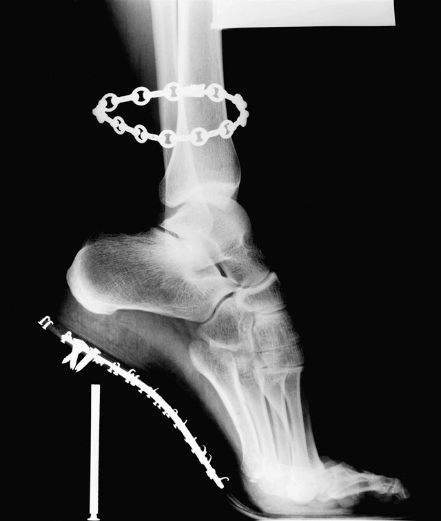 X-Ray, Van Cleef & Arpels, French Vogue, 1994
