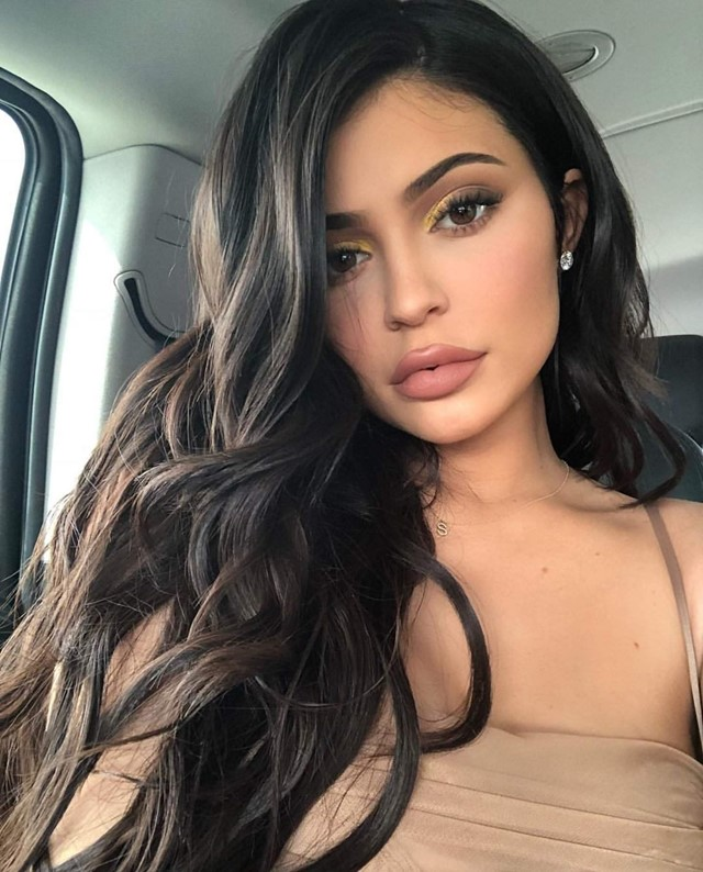 kylie jenner lip filler cosmetic surgery trend