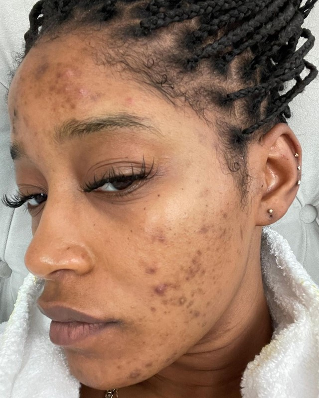 hyperpigmentation skin skincare products
