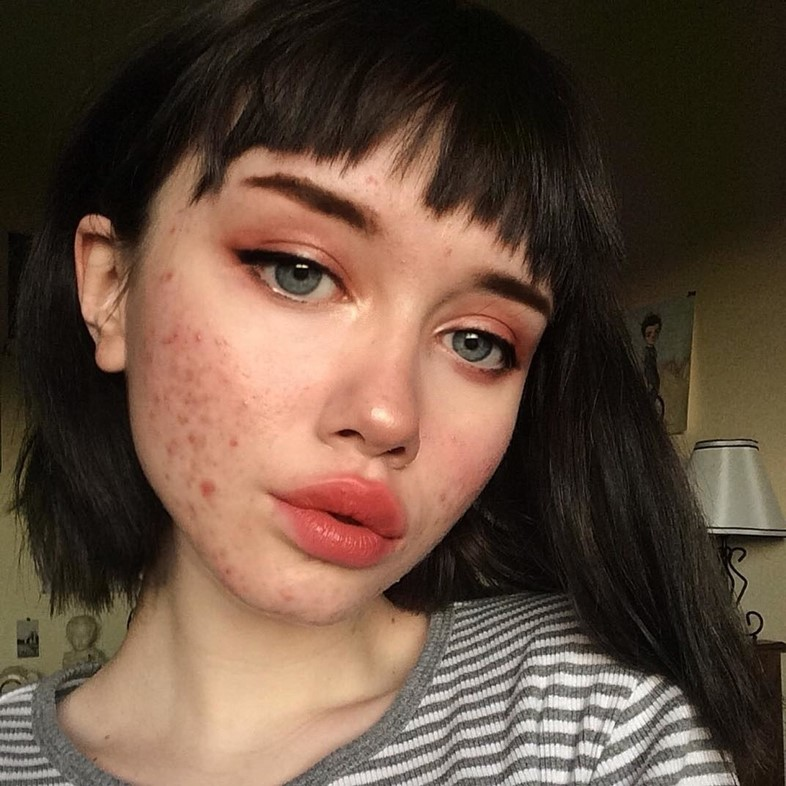 We Need To Talk About Pcos And Hormonal Acne Dazed Beauty