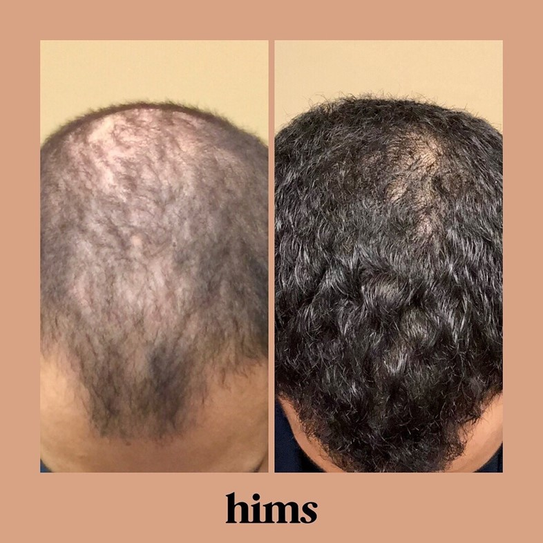 hims is taking the embarrassment out of hair loss and erectile dysfunction