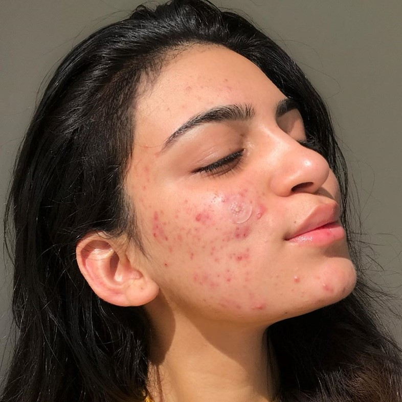 Ayesha Amir is the beauty blogger battling acne and haters simultaneously